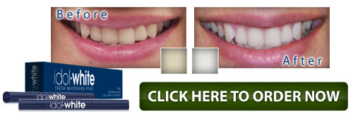 Idol white teeth whitening system